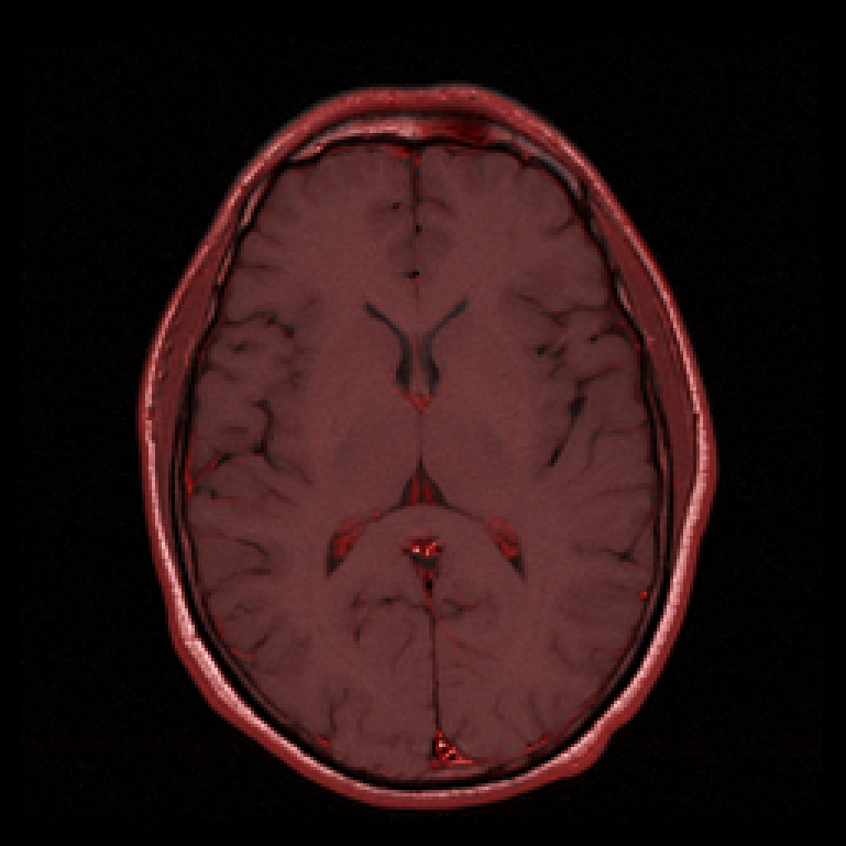 MRI T1; enhancing in red